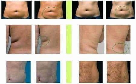 resultados ultracavitacion
