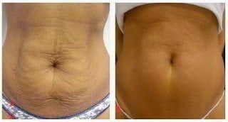 Resultados Ultracavitación en la piel 1