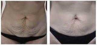 Resultados Ultracavitación en la piel 2