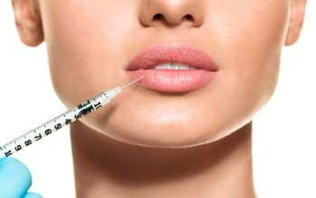 acido-hialuronico-labios
