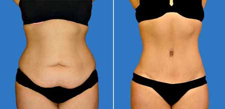 antes y despues abdomniplastia