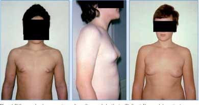ginecomastia en la pubertad