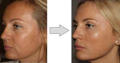 hilos tensores faciales antes y despues