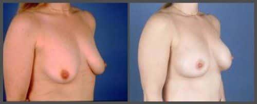 mastopexia aumento antes y después