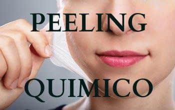 peeling quimico que es
