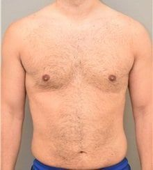 resultados ginecomastia 1b
