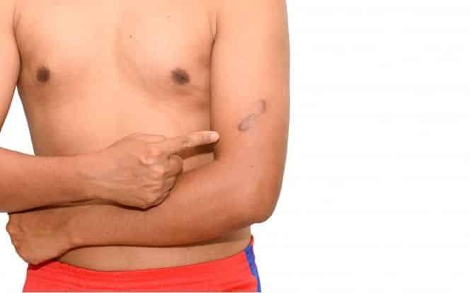 queloide cicatriz