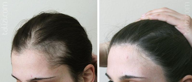 resultado-trasplante-de-cabello-mujer-turquia