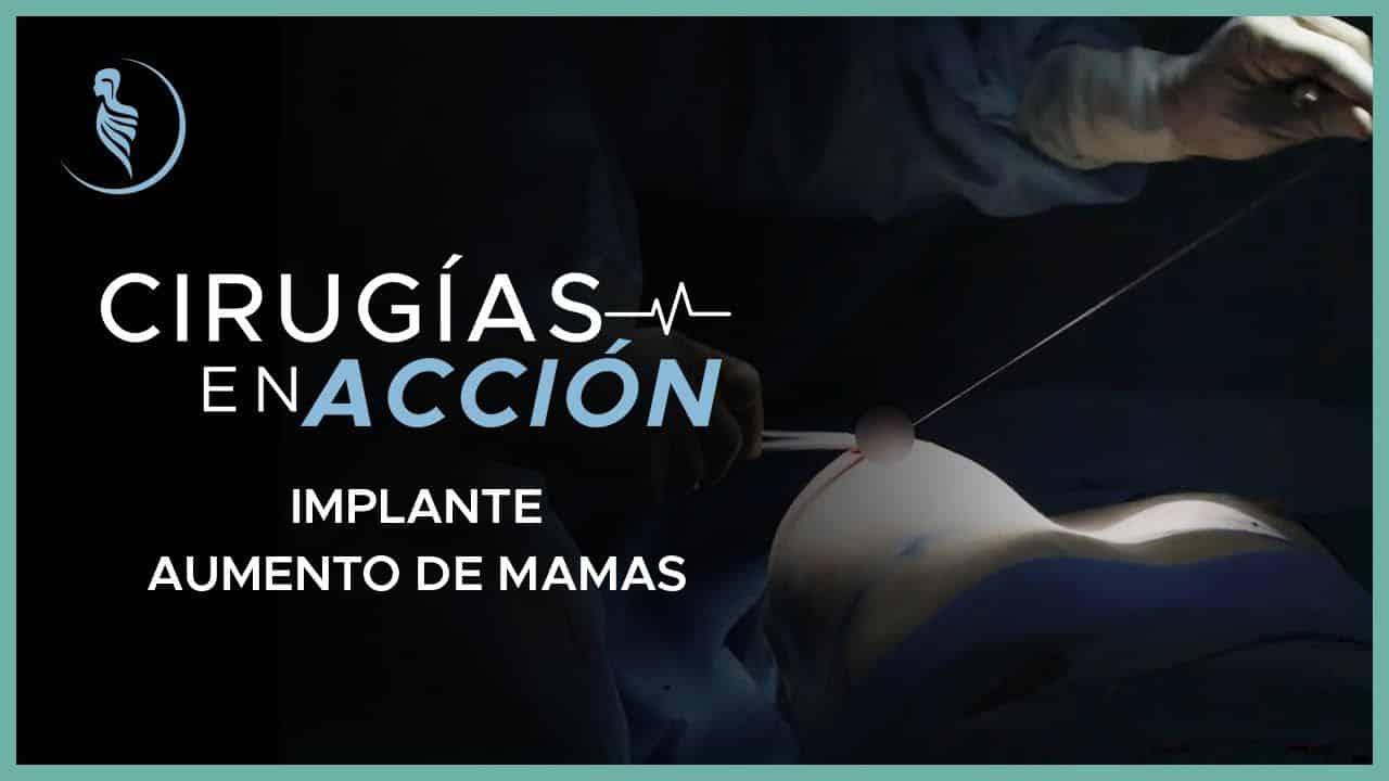 Implante/Aumento de mamas - Cirugía Plástica Martínez, Lima-Perú