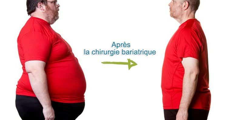 chirurgie bariatrique