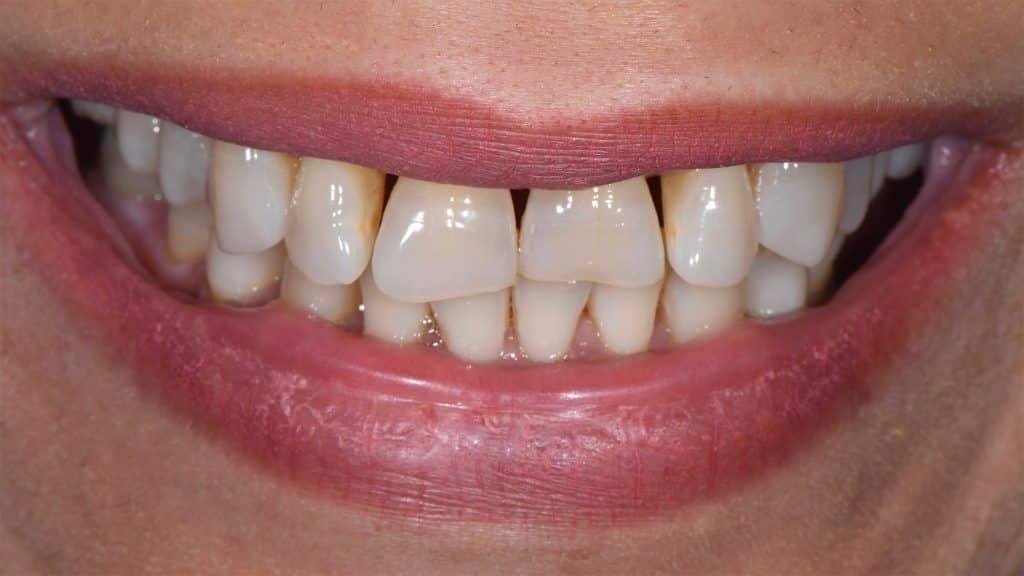 dents chevauchees