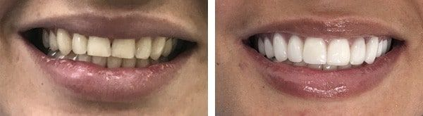 resultat traitement fluorose