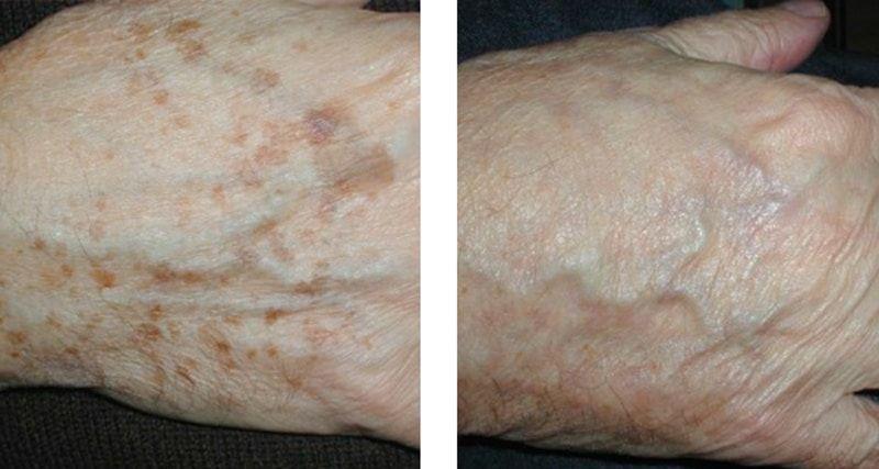 resultat traitement lentigos
