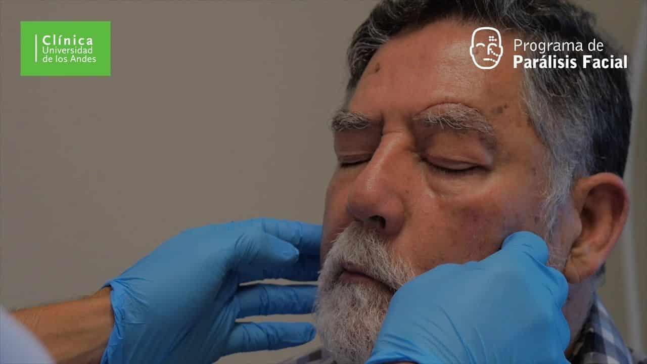 Paciente corrige parálisis facial gracias a cirugía