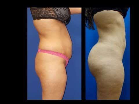 Aumento de glúteos con grasa por el Dr. Cortes | Houston, Texas