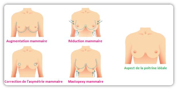 Cirugías de mama en Túnez
