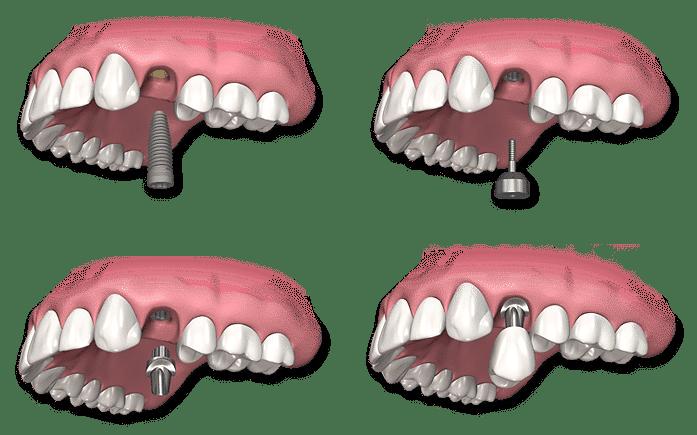 avantages implants dentaires