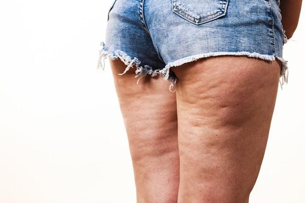 Celulitis: ¿cómo deshacerse de ellas?