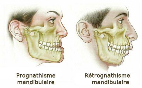 prognathisme retrognathisme mandibulaire