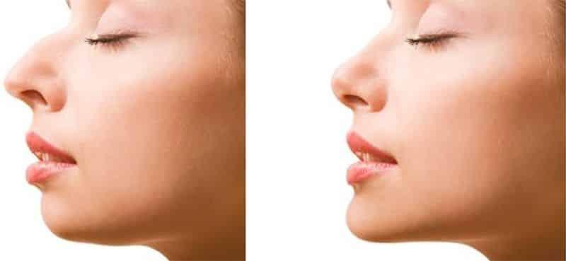 obstrucción de las vías respiratorias nasales