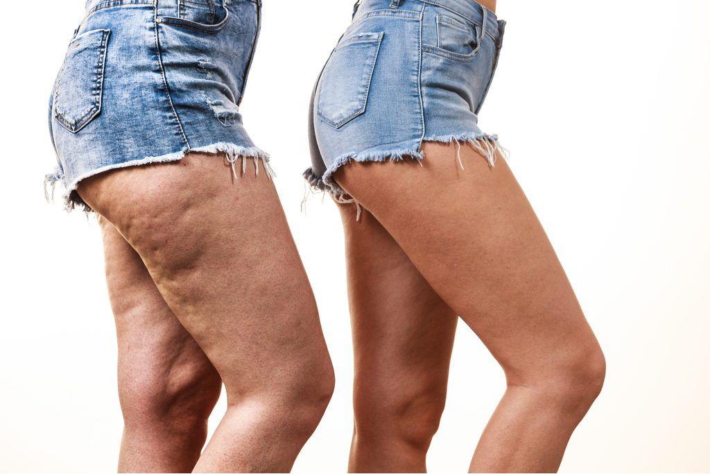 La liposuccion puede remodelar las piernas con edema