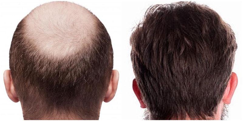 Francia después del trasplante de cabello antes