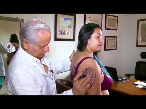 Antes y después de la cirugía plástica-Abdominoplastia Plus, Lipoescultura y Gluteoplastia.Cali, Colombia