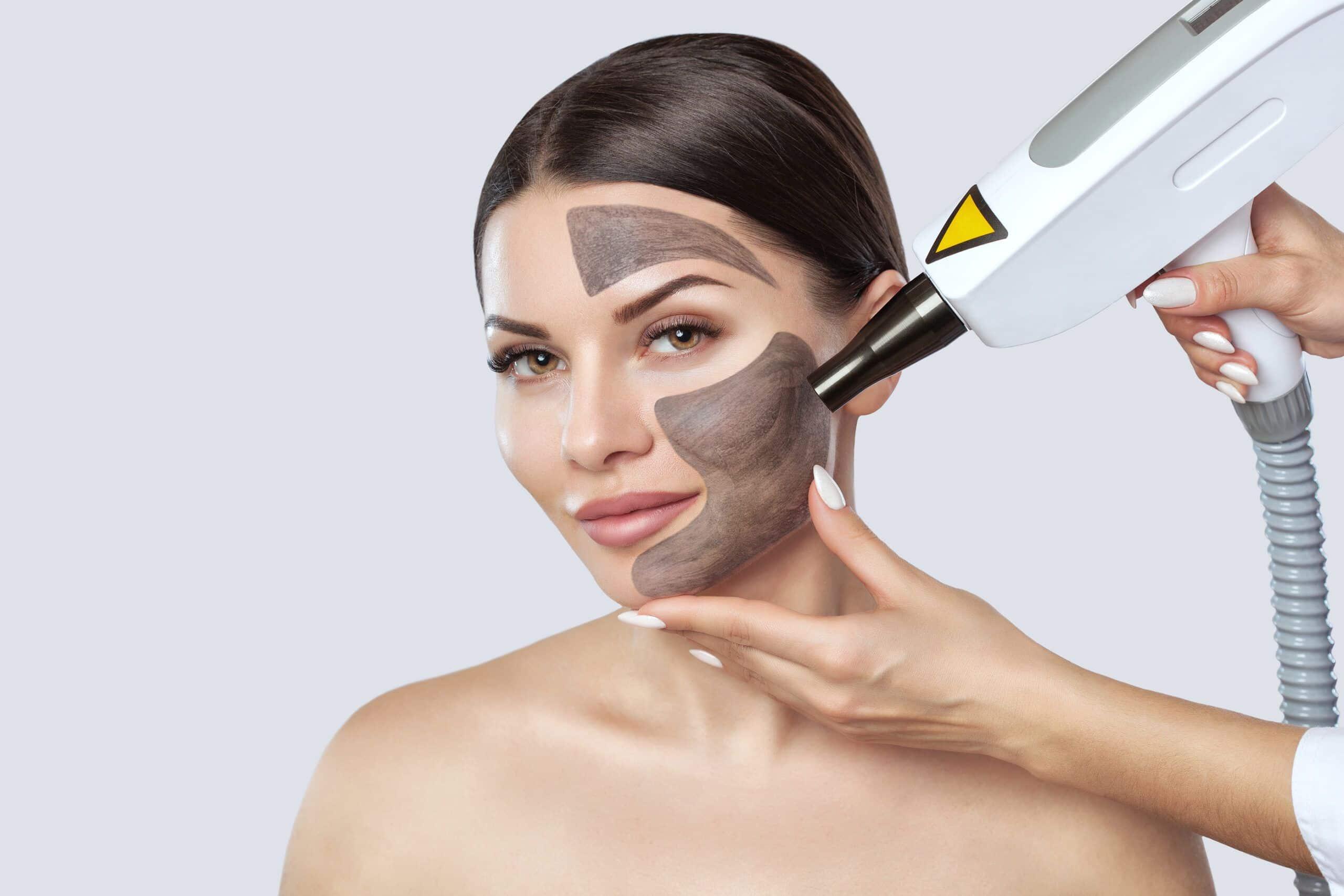 El mejor tratamiento para la pigmentación facial.