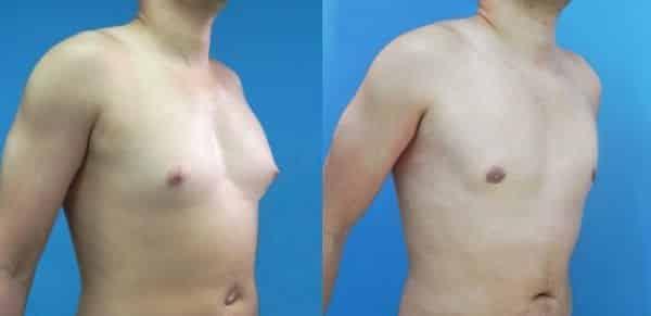 senos masculinos soluciones