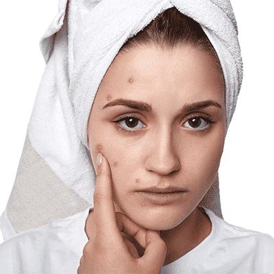 Remedios caseros para las cicatrices del acné durante la noche en Dubai