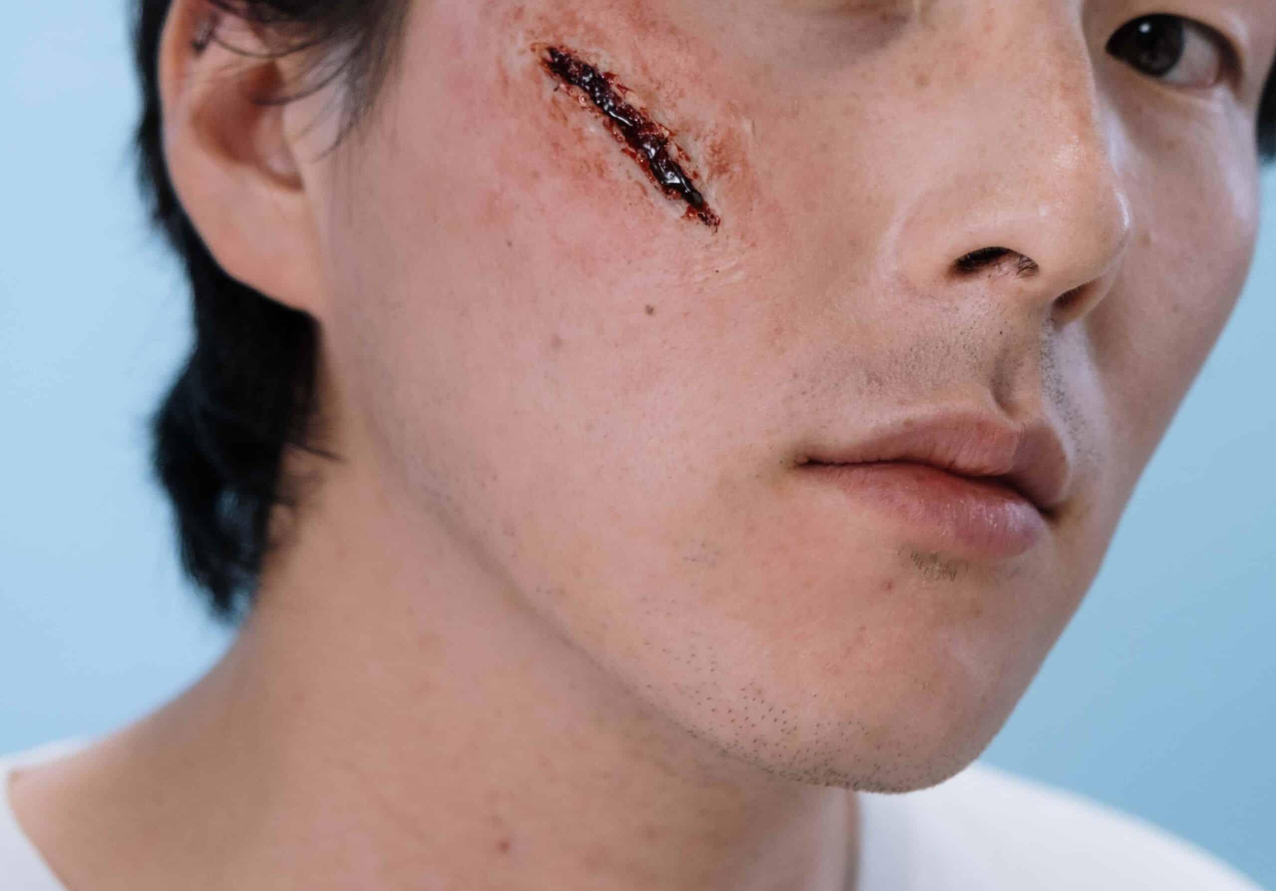 cirugía de reparación de cicatrices