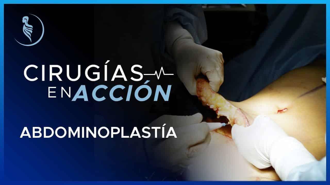 Cirugía Abdominal-Cirugía Plástica Martínez