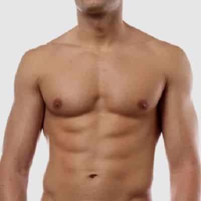 Cirugía de reducción mamaria masculina sin cirugía en Dubai