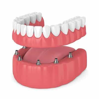 Costo de los implantes dentales completos en Dubai