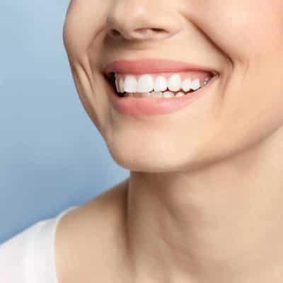 Costo del tratamiento de la sonrisa gingival