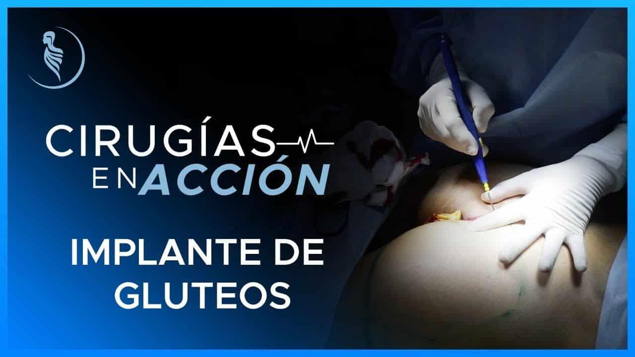 Implante de cadera-Martínez Cirugía Plástica