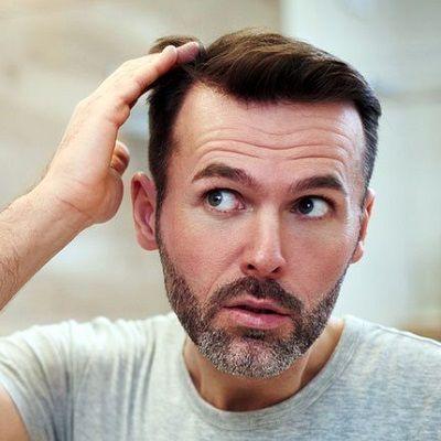 Por que los trasplantes de cabello en Dubai son tan caros