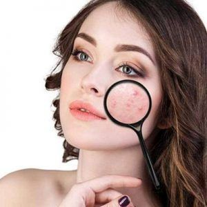 Remedios naturales para el acné en Dubai