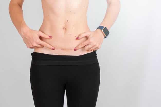 cicatrices permanentes-cirugiaestetica10