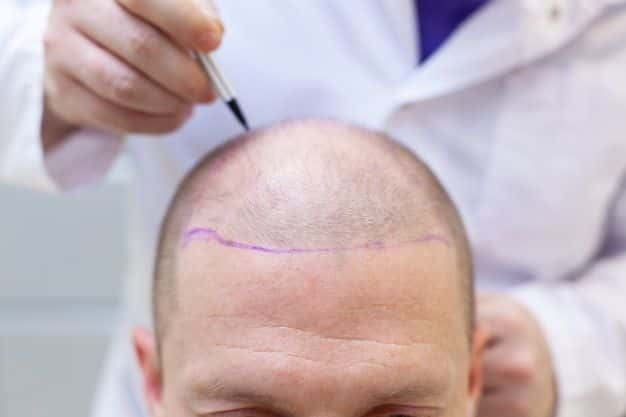 trasplante de cabello-cirugiaestetica10