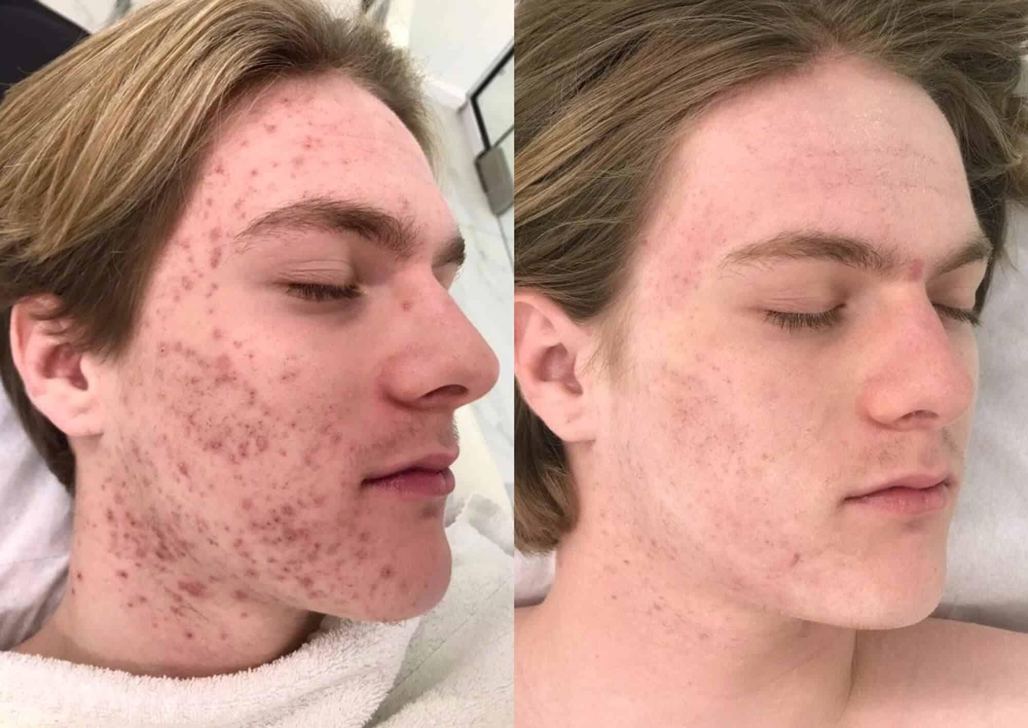 cicatrices del acné