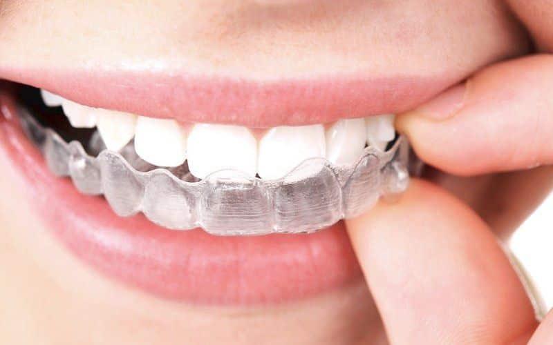 Frenillos invisibles dentadura