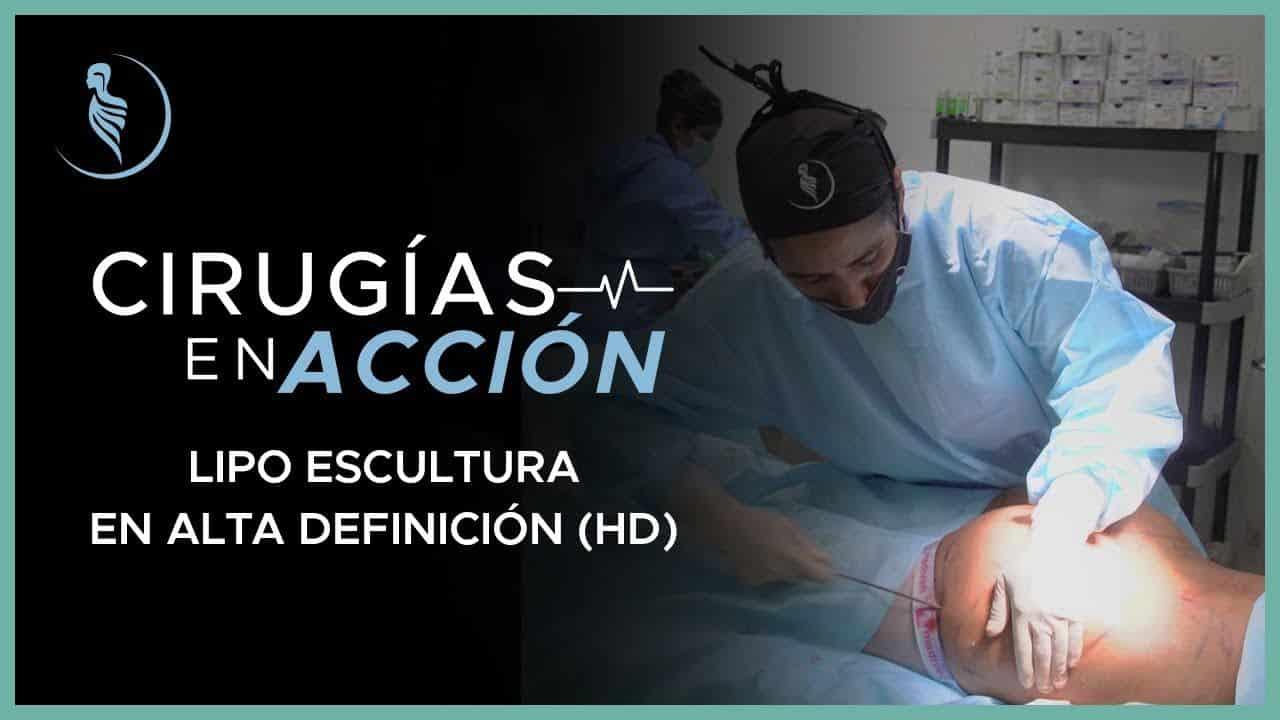 HD Escultura de Grasa-Cirugía Plástica Martinez