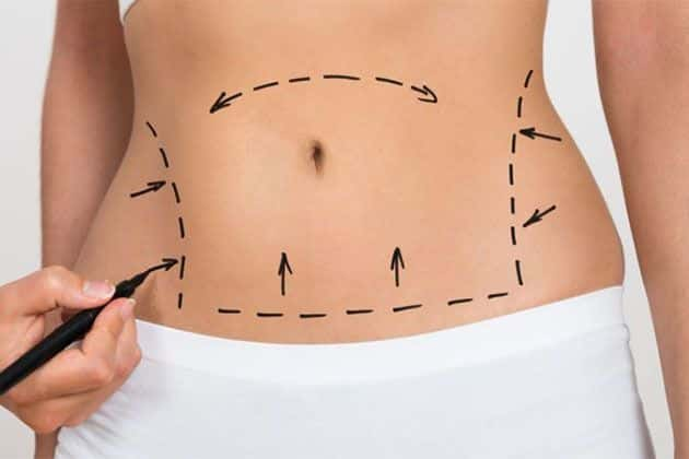 advantages-of-lipoabdominoplasty-liposuction-risk-and-complications-body-contouring-tool