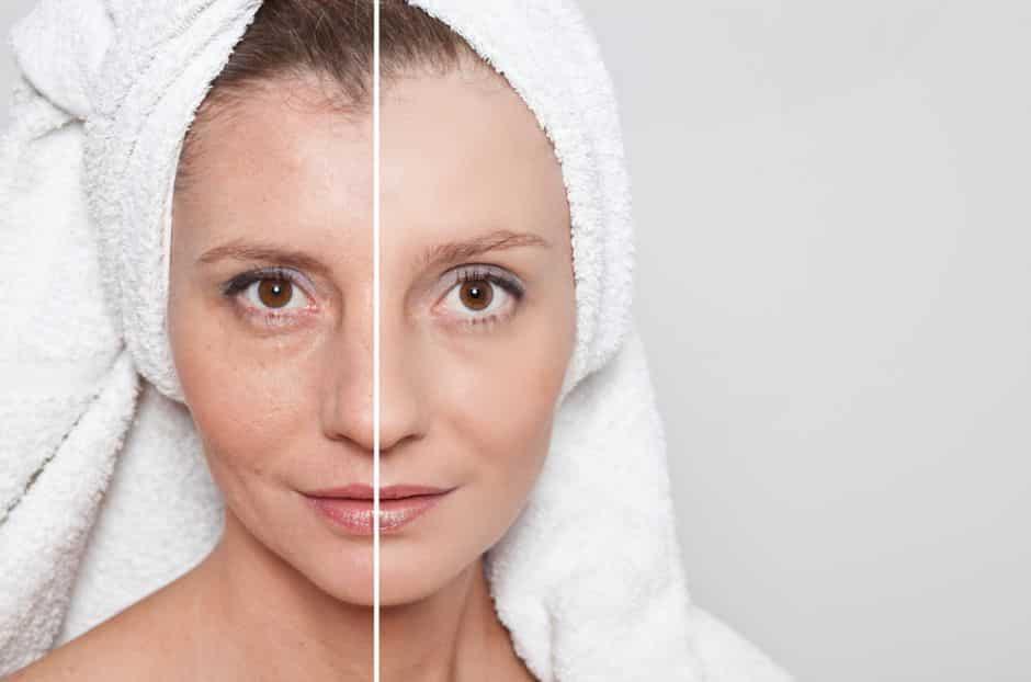 rejuvenecimiento del rostro