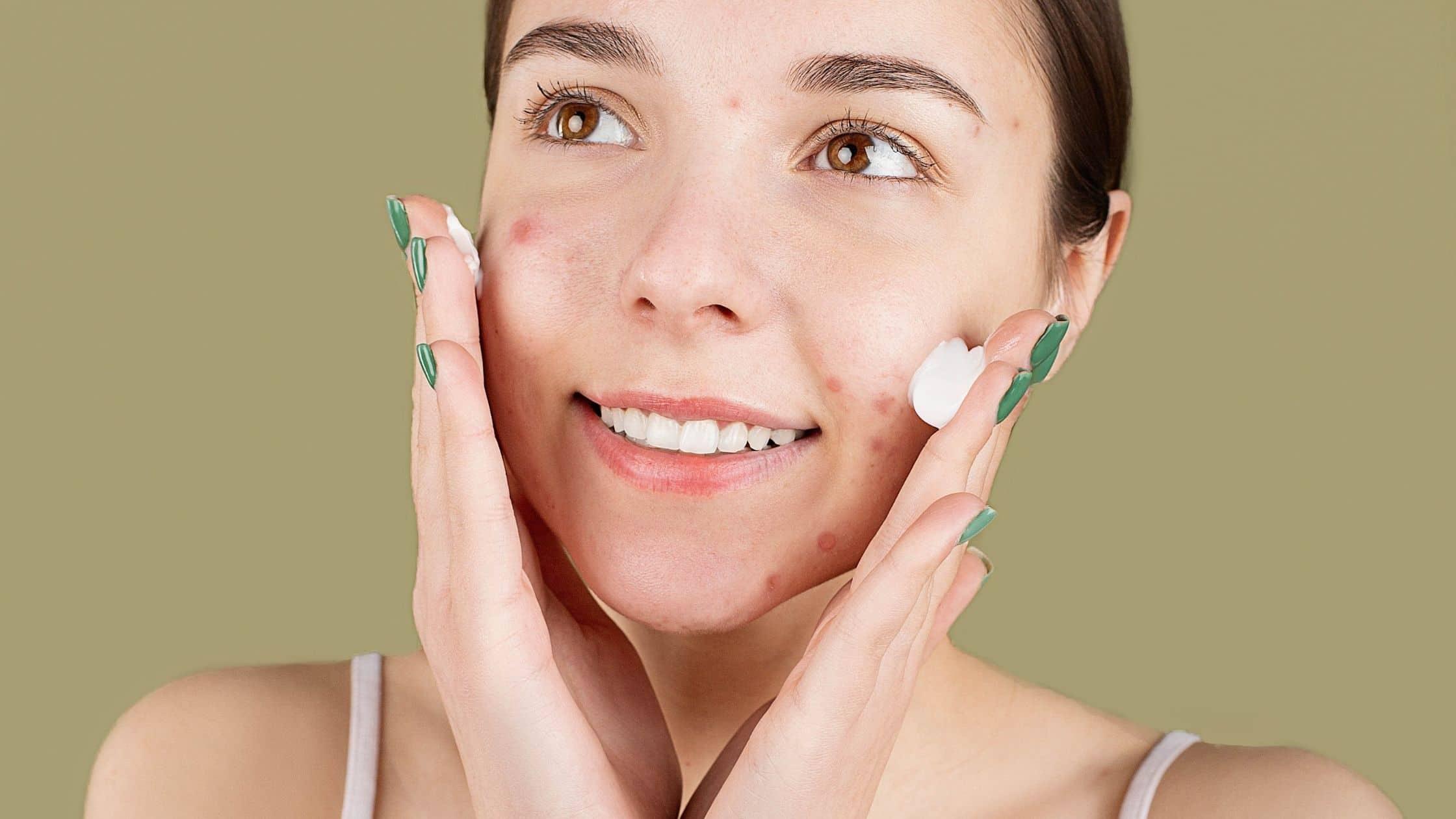Funcionan las exfoliaciones quimicas para las cicatrices del acne