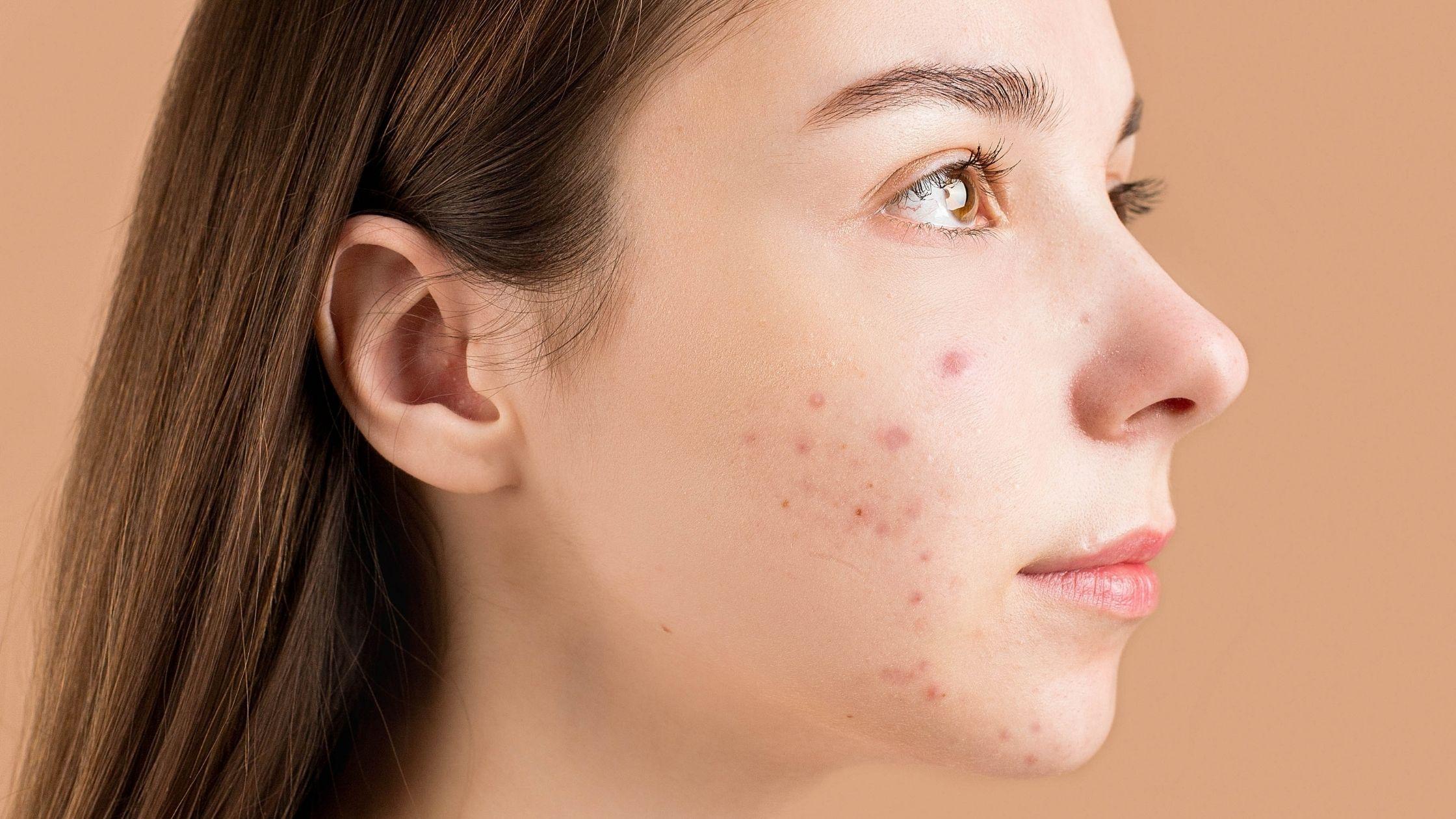 Acne nodular causas tratamiento remedios caseros y prevencion