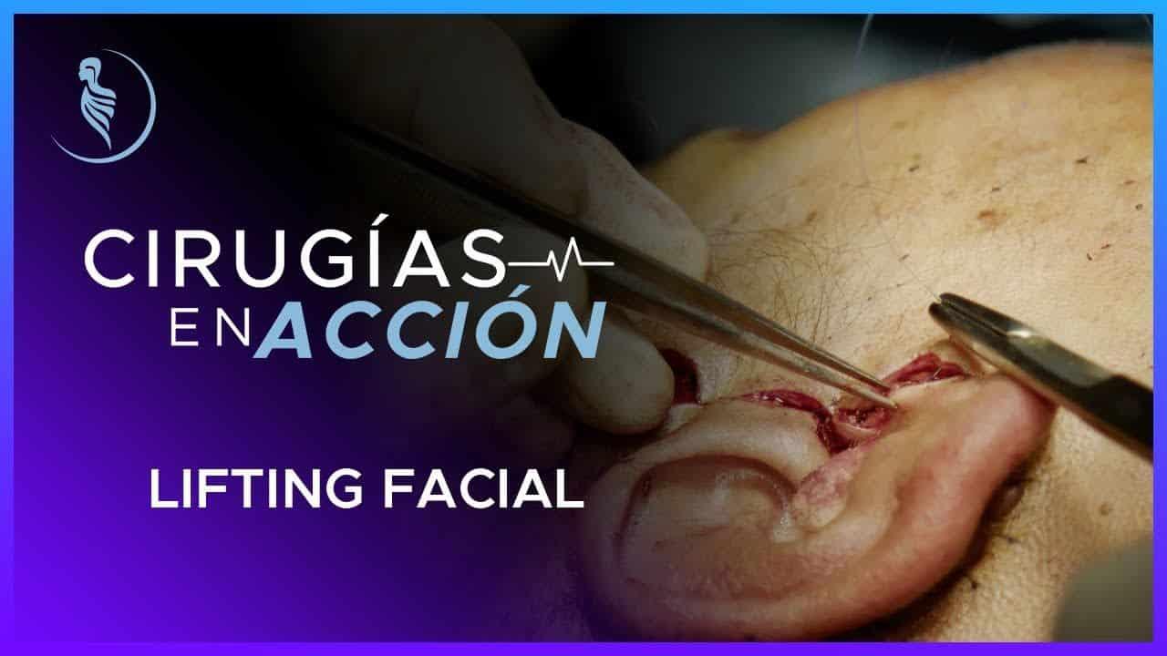 Cirugía Plástica-Cirugía Plástica Martínez