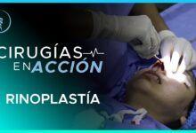 Cirugía Plástica Rinoplastia-Martínez