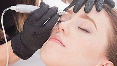 Tipos de tratamiento de las cicatrices del acné